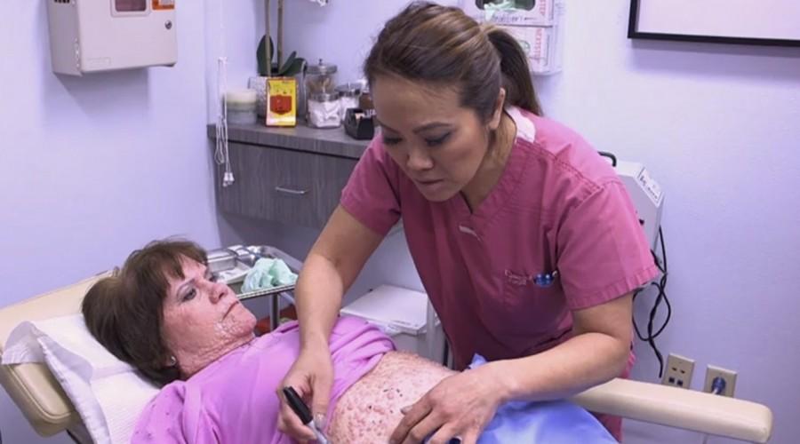 Dra. Sandra Lee le cambió la vida a mujer que sufría con dolorosos granos en toda su piel