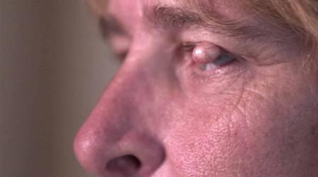 La Dra Sandra Lee mejorará la visión de una mujer con un quiste en el ojo