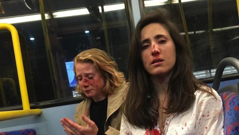 Denuncian brutal golpiza contra azafata uruguaya y su novia en un bus de Londres