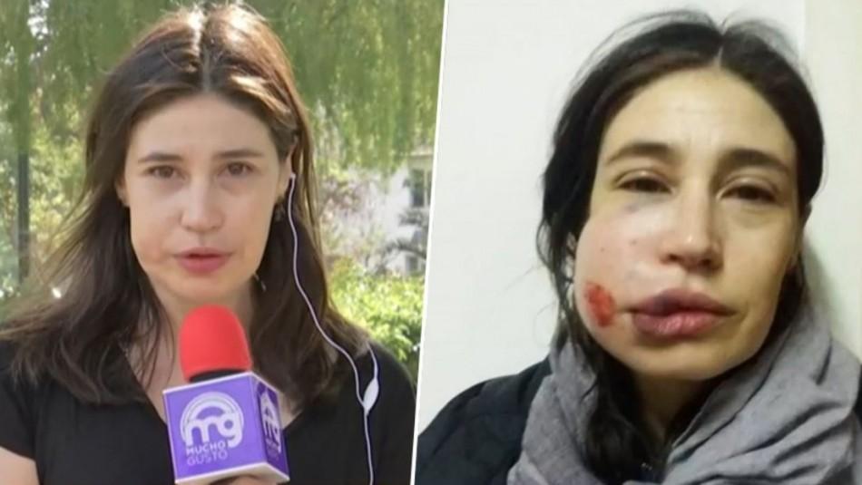 Actriz María Paz Grandjean tras recibir balín en su rostro: