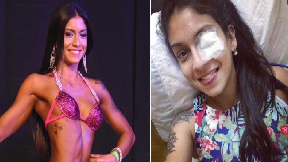 Joven sufrió hemorragia cerebral durante evento por abuso de los quemadores de grasa