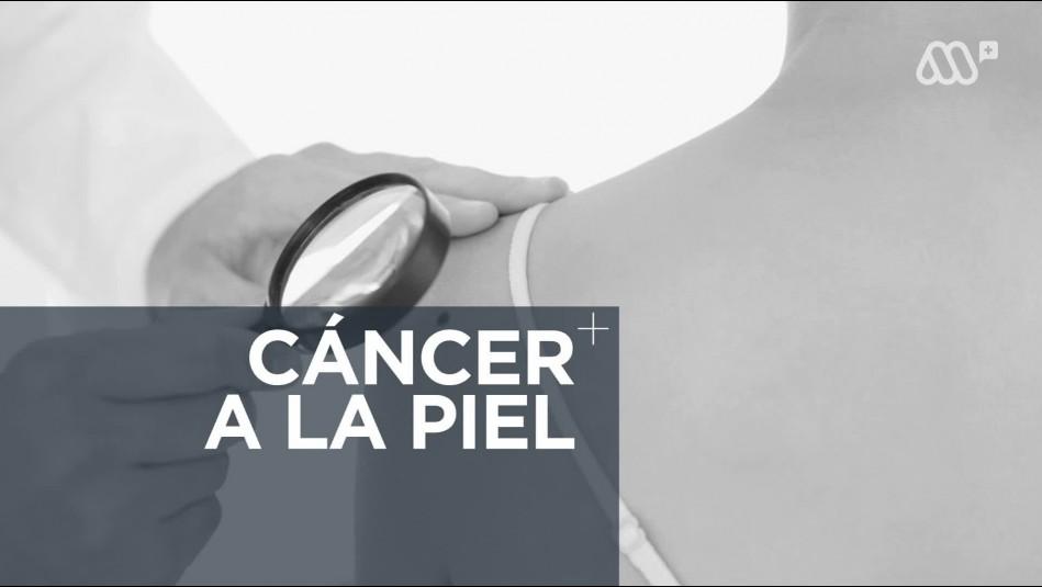 Cáncer a la piel: 60% de menores de 30 años en Chile presenta envejecimiento prematuro de la piel