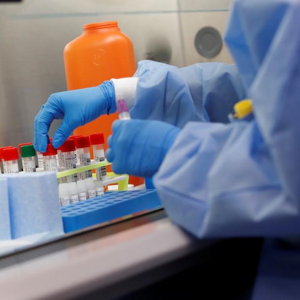 Mañalich eleva a seis el número de personas fallecidas en Chile por Coronavirus y los contagiados ascienden a 1.909