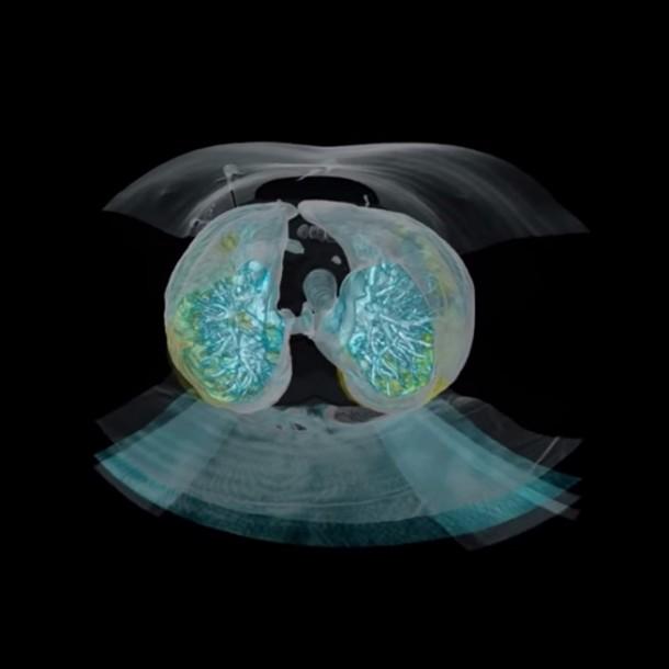 Así lucen los pulmones de un paciente con coronavirus: Médico muestra video para las personas