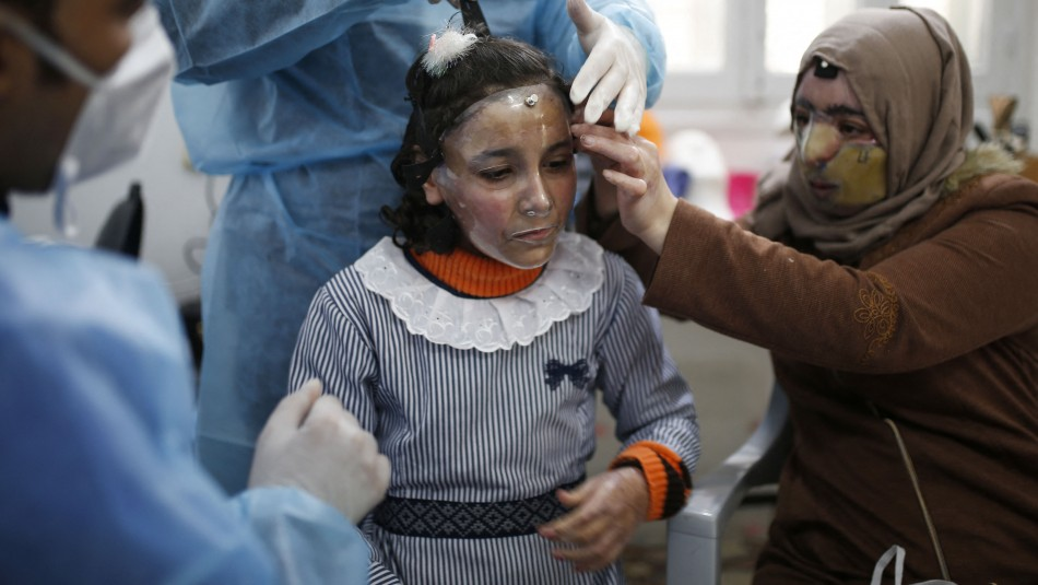 Máscaras impresas en 3D se usan para curar rostros quemados en Gaza