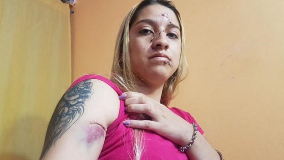 Brutal ataque en fiesta clandestina: desfiguraron la cara a una adolescente con una botella